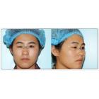 上睑下垂修复 (额肌瓣手术后复发的案例)
