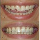 微创快速美容修复前牙外伤