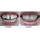 门牙牙缝过大,树脂贴面补牙