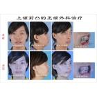 上颌前凸的正颌外科治疗手术实例