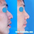 鼻尖,鼻基底填充,驼峰鼻矫正