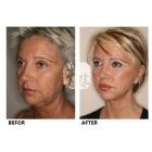 面部年轻化综合治疗(手术+微整形+抗衰老)