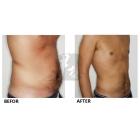 腰腹吸脂效果与术后坚持锻炼密不可分