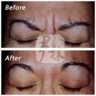 进口肉毒素治疗眉间纹