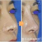 鼻尖移植隆鼻术后修复