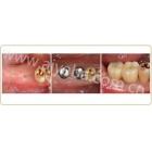 后牙两颗种植案例