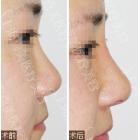 球形鼻尖矫正术前术后对比照