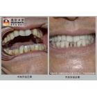 侧切牙缺失种植牙修复实例