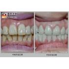 四环素牙快速修复,7天变白变靓!