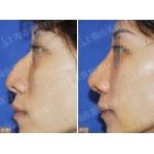 驼峰鼻宽鼻畸形矫正对比案例