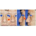 增加鼻尖突出度 延长鼻长度案例