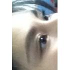 隆眉弓-medpor植入