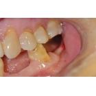 一例窄小牙槽骨的种植案例