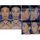 鼻尖后缩伴驼峰鼻、宽鼻