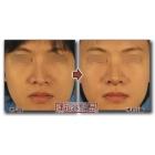 唇情物语(第19话):软骨性歪鼻矫正