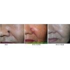 鼻部基底细胞癌手术切除皮瓣转移修复