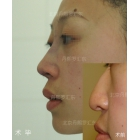 驼峰鼻矫正 鼻综合整形术毕即刻