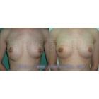 隆胸手术修复案例(二)位置偏低