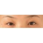 眼皮松弛重睑术