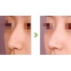 驼峰鼻整形