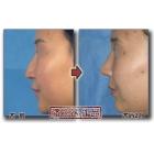 唇情物语(第24话):驼峰鼻/鼻尖下垂矫正