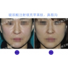 苹果肌、鼻唇沟玻尿酸注射填充