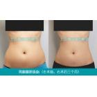 腰腹部吸脂减肥