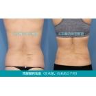身体中段吸脂减肥