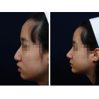 驼峰鼻矫正案例