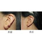 附耳及耳前瘘案例分享