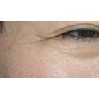 眼周除皱术后3个月