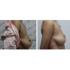 矫正乳房下垂