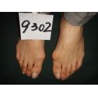 大脚骨手术前后对比图