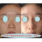 自体鼻中隔软骨及耳软骨行短鼻延长术