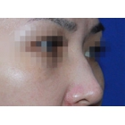 【vvmei案例分享】玻尿酸 注射隆鼻