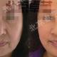 微光逆转术面部提升