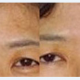 微光去除眉间纹