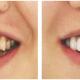 牙齿矫正修复案例