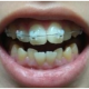 长沙美莱-牙齿矫正案例日记分享
