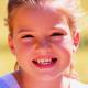 长沙美莱-儿童牙齿矫正牙套好吗?