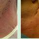 面部轮廓无痕焊接技术(微创性面颈部组织提升术)