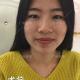 广州美莱双眼皮手术案例术后1个月反馈