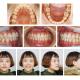 前牙反颌矫治案例分享
