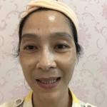 跟王医生认识比较久了,有时会到医院来坐,脸上的斑长了有段时间,这次王医生...