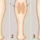 腿部肌肉发达,严重影响身材除了吸脂还有什么办法?