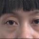 心路历程我之前从未想过有会走进整形美容医院,我的眼袋是遗传的,自从出生就有,前几天翻看初中时期的照片...