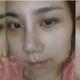 案例内容大家好,我的手术包括眼睛整形(开内外眼角)鼻子(鼻中隔+耳软骨+硅胶+鼻孔缩小)2周但是我的心情感觉...