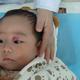我家宝宝出生后一周左右,因为当时天气比较热,额头上长了大片的痱子。过了几天之后,额头的小红点消退了,...