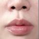 大家好!我在2个月前做了丰唇手术了现在做日常生活基本上没问题了,越来越喜欢现在的嘴唇了。肉类也是小心...